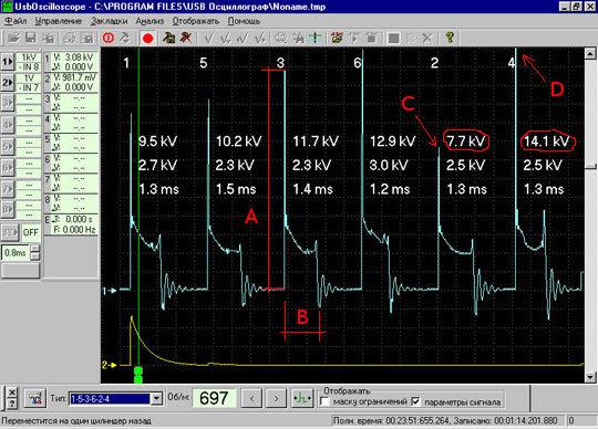 Результат диагностики системы зажигания автомобиля с помощью осциллографа